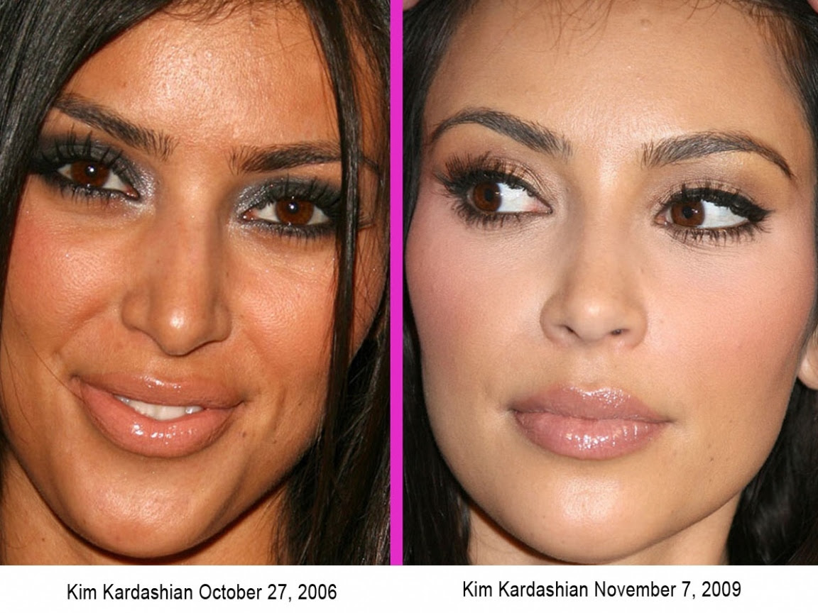 Before And After Kim Kardashian surgery Or Not Pictures, Photos, and Images for Facebook