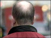 Image of baldness