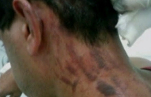 Policial é suspeito de agredir Renato Leal em Marzagão, Goiás (Foto: Reprodução/ TV Anhanguera)