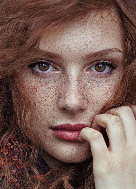 freckled people wholl hypnotize    unique