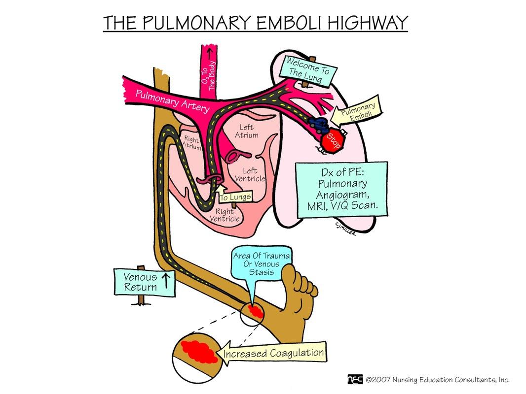Diagnosis: Nursing Diagnosis For Pulmonary Embolism