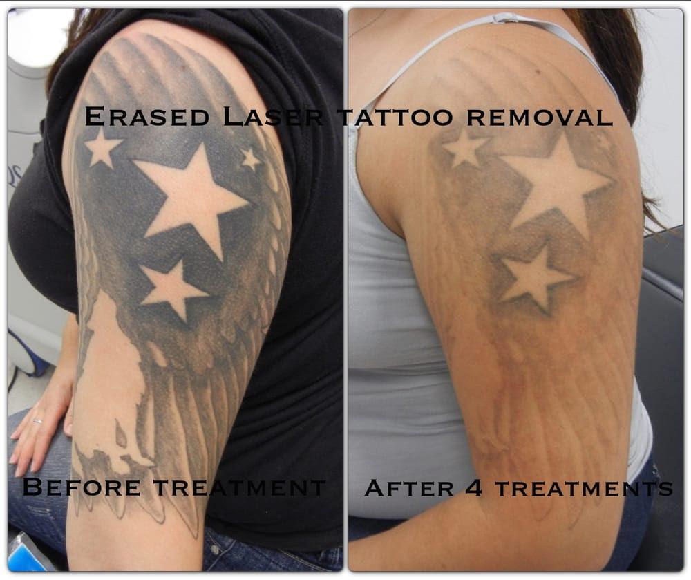 Diy Tattoo Removal Laser Diy Campbellandkellarteam