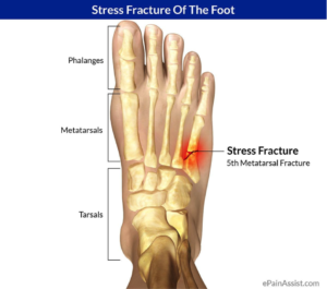What Is A Hairline Fracture Podiatry First