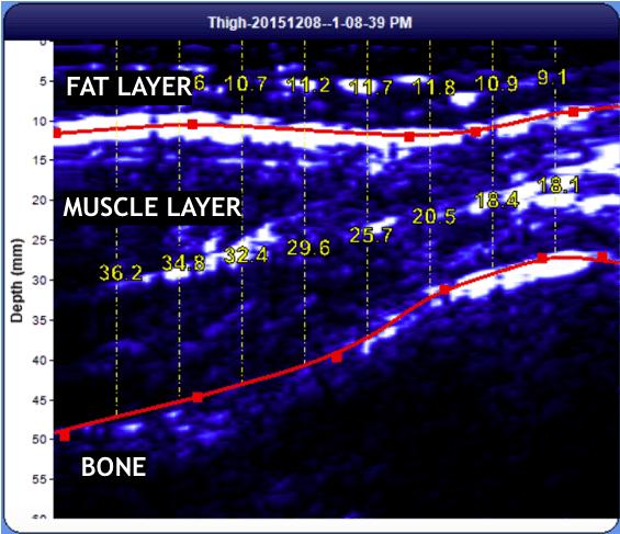 body fat percentage test adelaide