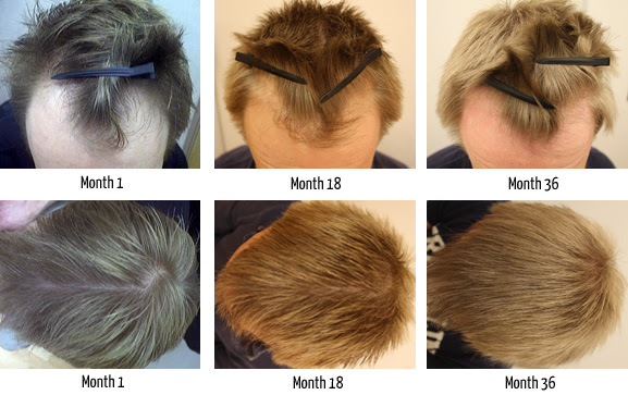 Finasteride 1 Month Success After 3 Months On Finasteride