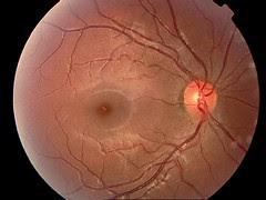 retinal photo 2
