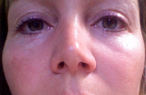 Karine is healing fast from her upper and lower eyeliner tattooing procedure