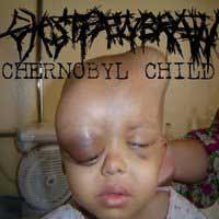 chernobyl_child_200