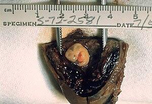 ID#: 570 Gross pathology of tubal pregnancy. S...