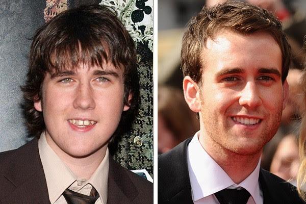 Matthew Lewis em 2005 e em 2011 (Foto: Getty Images)