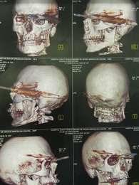 Exames mostram detalhe de como foi o ferimento Foto: Divulgação