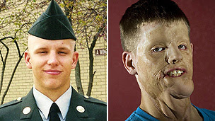US Army private Mitch Hunter before the accident and how he looked before the face transplant