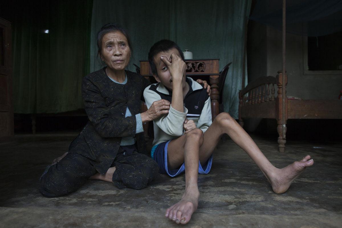 Estas 12 fotos mostram o legado devastador dos Estados Unidos no Vietnã 09