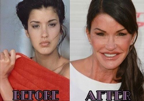 Resultado de imagem para bocas turbinadas por cirurgia plastica de famosos