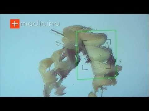 Cos'è lo Scanner per l'Impronta Digitale? Risponde alla domanda il Dott. Salvatore Ferrara - Odontoiatra e Chirurgo Maxillo Facciale - Napoli