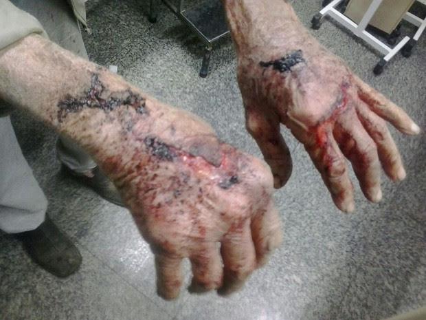 Homem de 91 anos foi agredido e ficou com marcas nas mãos em Gravataí (Foto: Divulgação/BM)