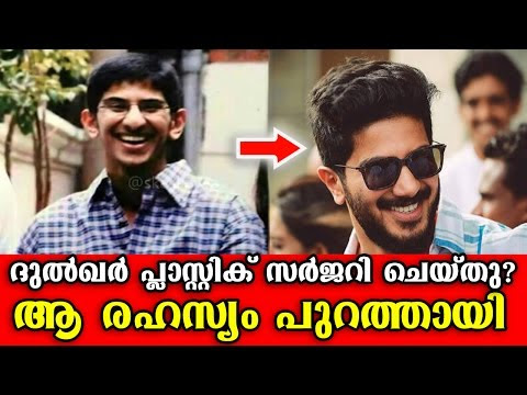 Dulquer Salman Plastic Surgery Secret | Revealed The Secret