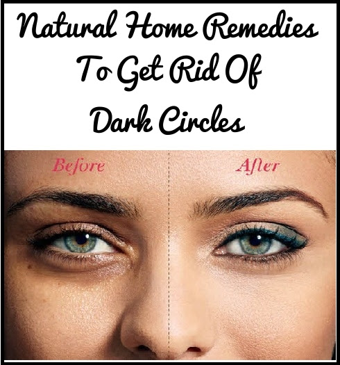 How To Get Rid Of Dark Circles Under Eyes? Natural Home ...