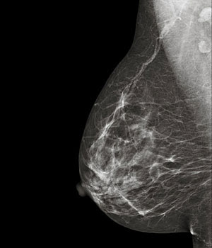 Imagen radiográfica de una mamografía patológica [http://www.intramed.net].