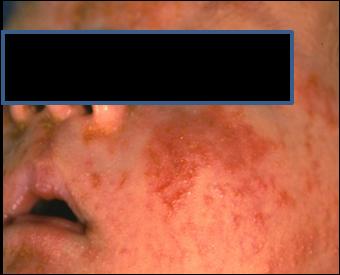 scalp eczema | Eczema Blues