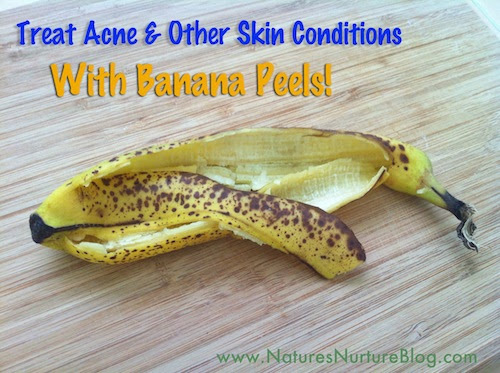How To Treat Acne Other Skin Conditions With Banana Peels