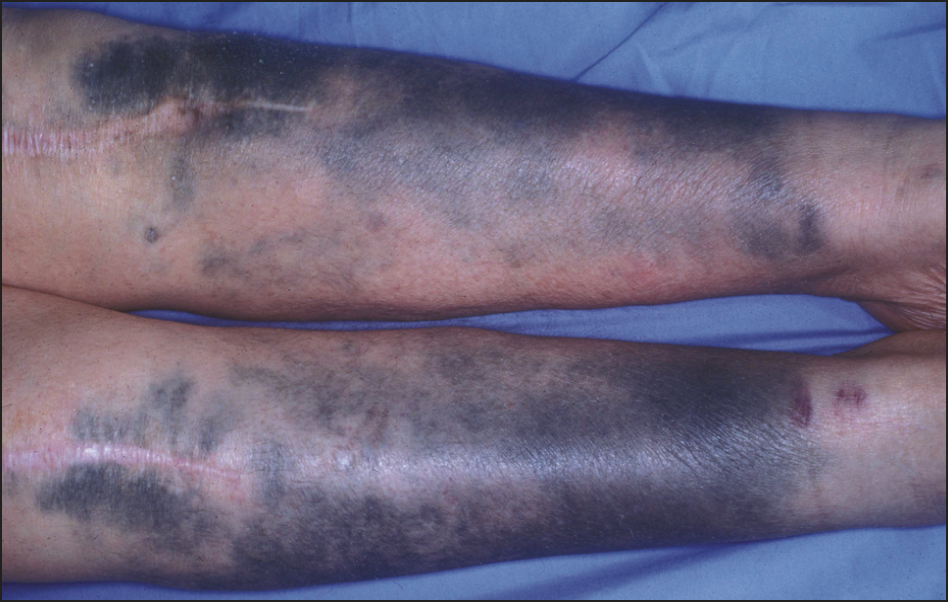 Blue-Black Pigmentation of Legs and Arms in a 68-Year-Old ...