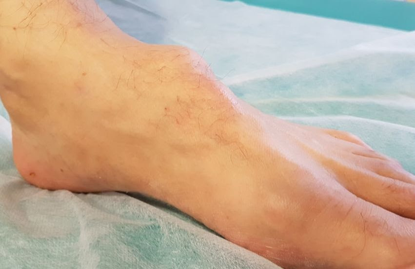 bnjolan di kaki