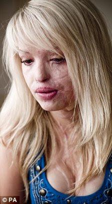 Σοβαρό τραύμα: Katie υπέστη υπέστη εγκαύματα τρίτου βαθμού, που χάνει τα περισσότερα από τη μύτη της, τα βλέφαρά της και κατά το ήμισυ το αριστερό αυτί.  Τα μάτια της, το στόμα, τη γλώσσα, τον οισοφάγο, τα χέρια, τα χέρια, το λαιμό και διάσπαση κάηκαν.  Επίσκεψη άφησε το 2009 και δεξιά, πριν από την επίθεση