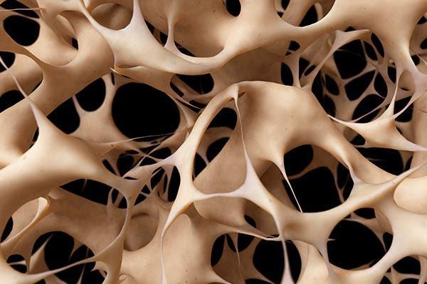 la-osteoporosis-desp
