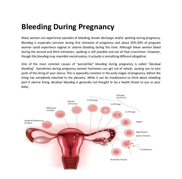 chrishedgesdesign: What Does It Mean If You Start Bleeding