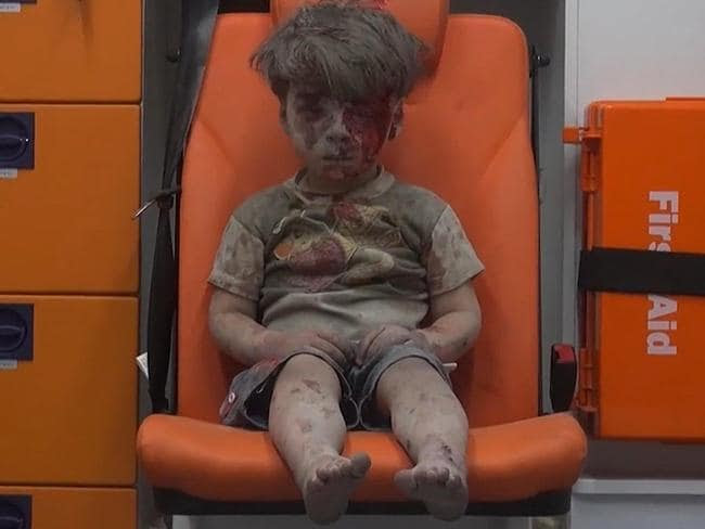 Five-year-old Omran Daqneesh sits in an ambulance waiting for treatment. Picture: Aleppo Media Center via AP
