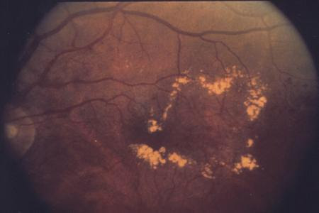 Download 770 Background Retinopathy Paling Keren