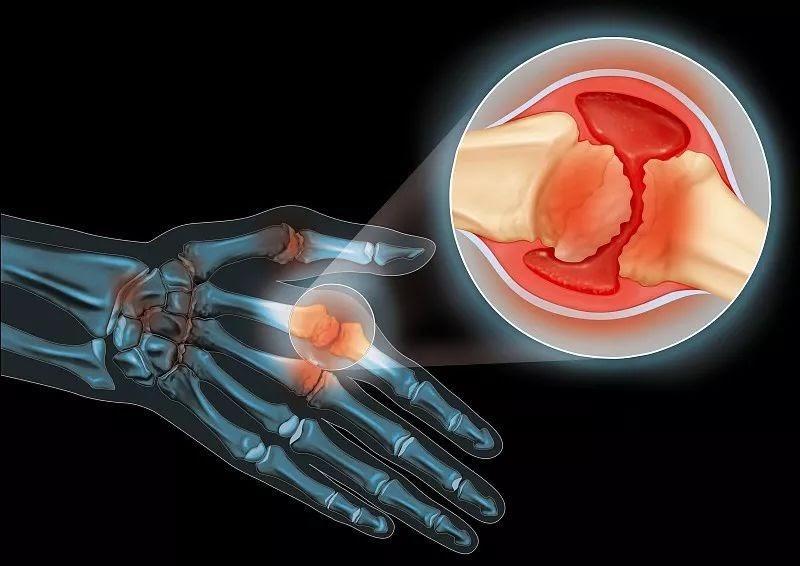 Image result for क्या आपके शरीर की हड्डियों से आती है कट-कट की आवाज, तो सकती है ये खतरनाक बीमारी