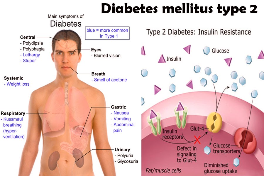 Diabetes Typ 2 - was Sie wissen sollten | diabetes.moglebaum.com