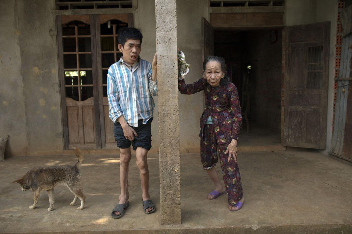 Estas 12 fotos mostram o legado devastador dos Estados Unidos no Vietnã 02