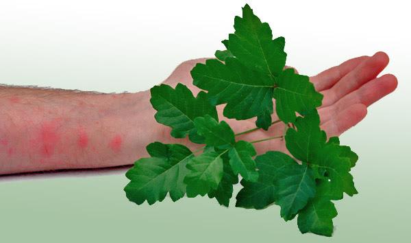 poison ivy rash pics. Poison oak/ivy rash