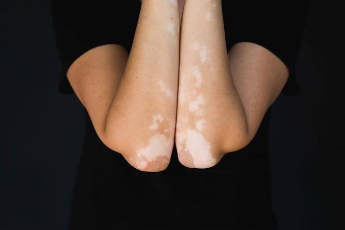 Vitiligo: Kenali Gejala Dan Pengobatannya oleh - anakbodrex.uno