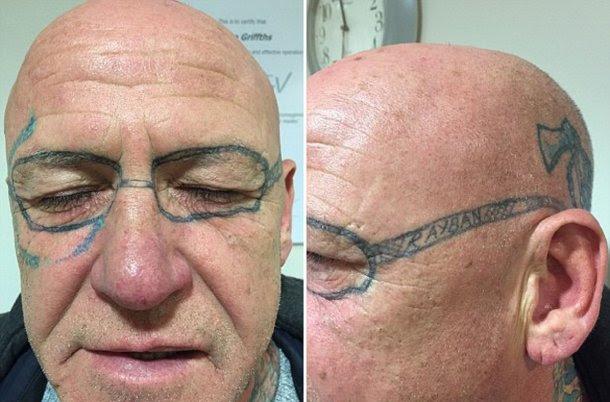 Se Emborrachó Y Despertó Con Un Horrible Tatuaje En Su Cara Nexo