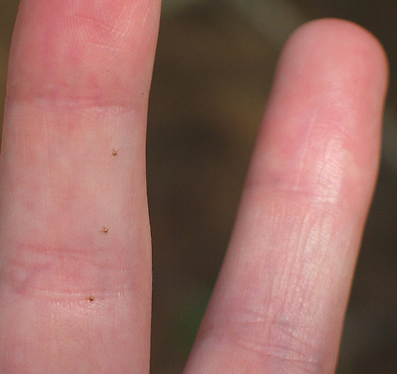 tiny Seed Ticks