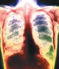 Die Tubekulose