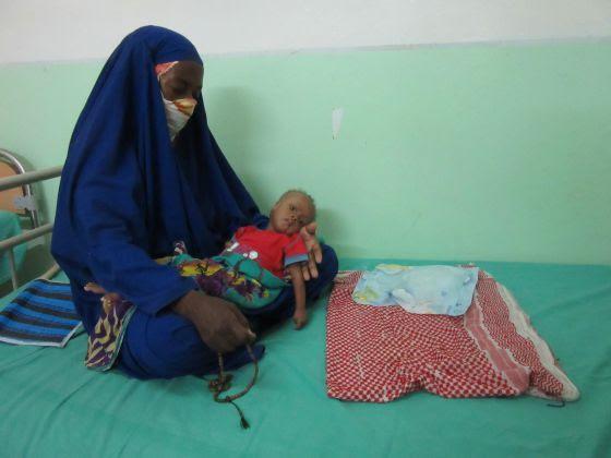 Mouna Medrid con su hijo de nueve meses Sidi Mohamed Ould Alioune, que ingresó con problemas respiratorios, gastroenteritis y malnutrición en el hospital de Nuakchot.