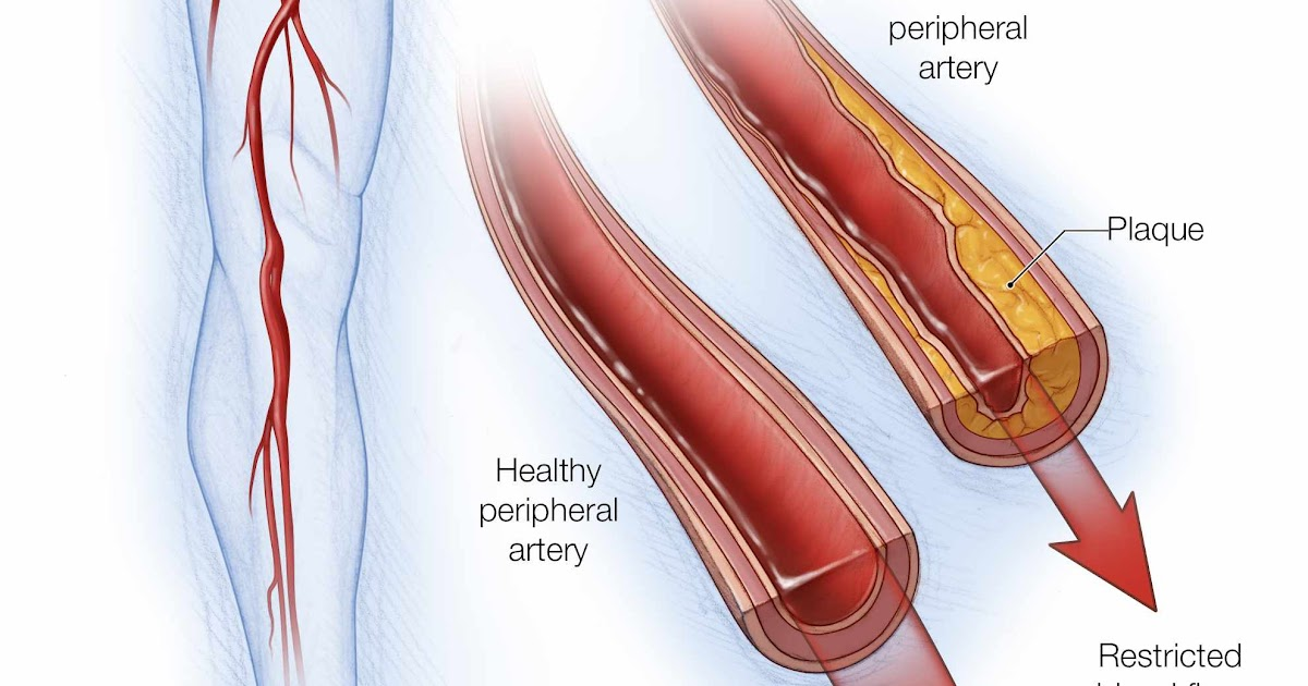 Arteries Of The Leg Diagram