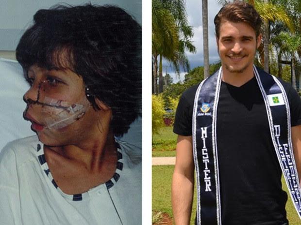 Ao lado esquerdo, Ecktor Lopes, aos 9 anos se recuperando de câncer no nariz. No lado direito, o jovem comemora a faixa de Mister Distrito Federal (Foto: Jéssica Nascimento/G1)