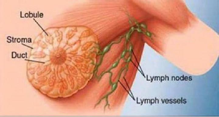 Resultado de imagem para câncer de mama