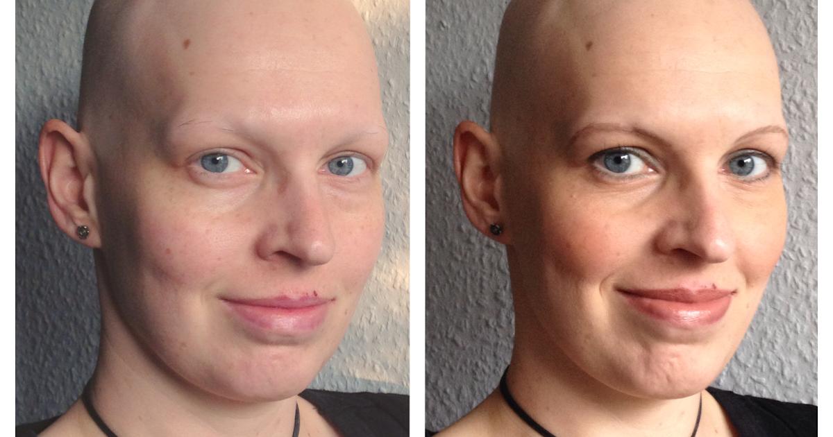 haare schneller wachsen nach chemo