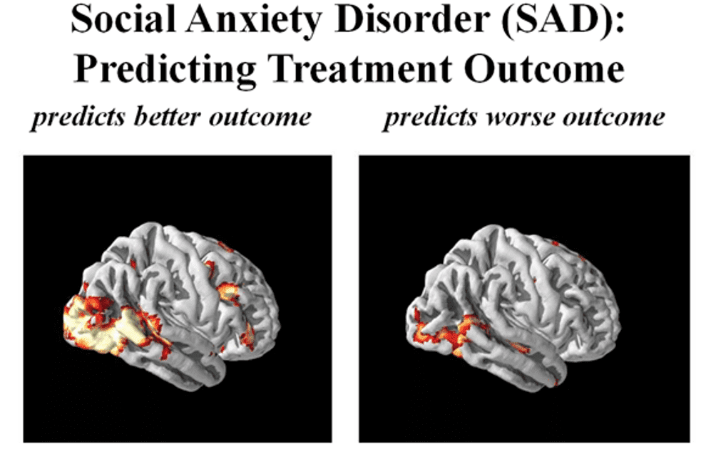 Can A Brain Scan Show Anxiety - Etuttor