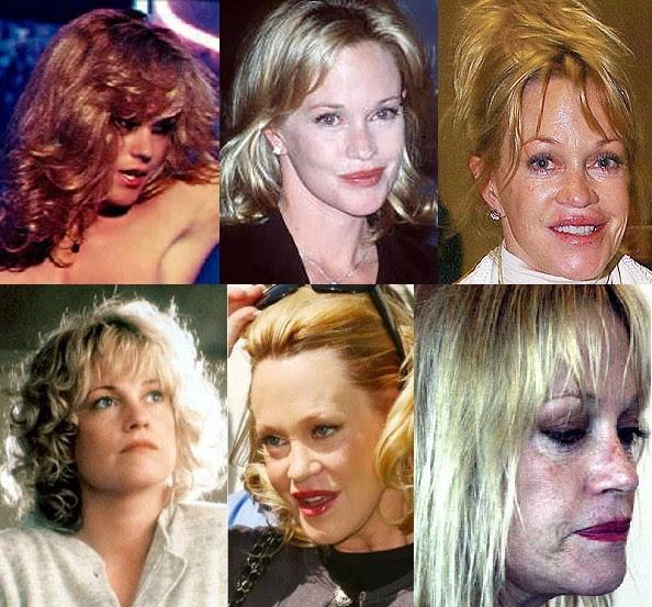 Disastres de cirurgia plástica de celebridades - Melanie Griffiths