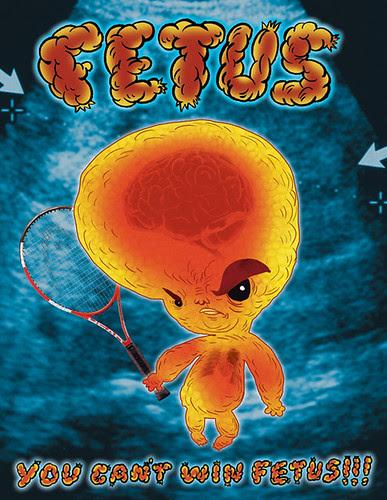FETUS1!!!