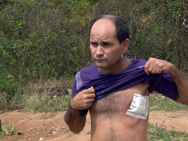 Homem só descobriu que levou tiro no dia seguinte em Pouso Alegre (Foto: Reprodução EPTV / Edson de Oliveira)