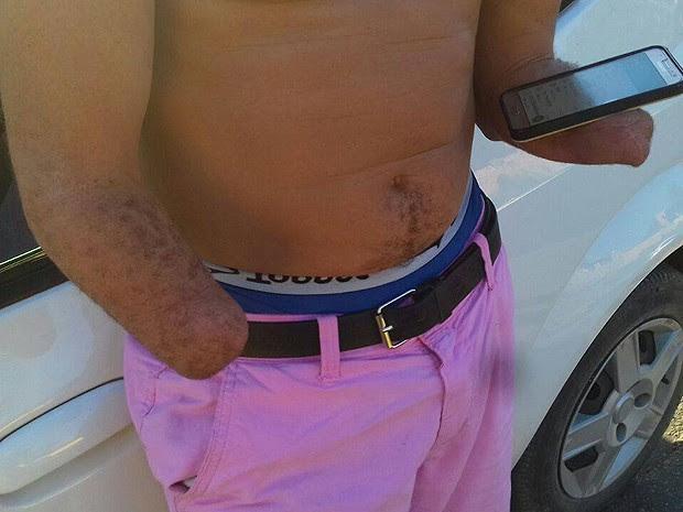Homem com as mãos amputadas é flagrado ao dirirgir carro na BR-101, na Bahia (Foto: PRF / Divulgação)
